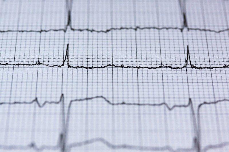 Mann jähriger blutdruck 60 Blutdruck senken: